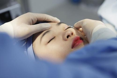Cơn sốt tạo mí mắt không cần phẫu thuật