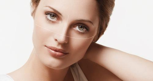 Phẫu thuật nâng mí mắt được thực hiện an toàn
