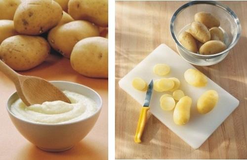 Khoai tây và sữa điều trị mụn trứng cá một cách hiệu quả và an toàn