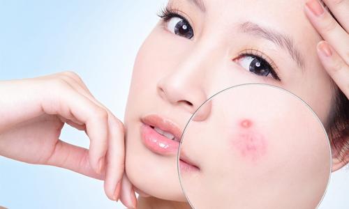 Trị mụn trứng cá từ khoai tây mang lại hiệu quả cho làn da của bạn